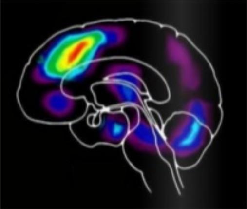 Activité du cerveau en mode adaptatif