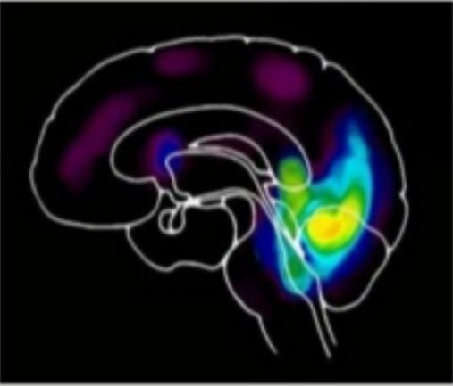 Activité du cerveau en mode automatique